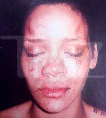 Photo de Rihanna Battue : Qui a diffusé la photo ?
