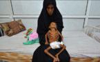Moyen-Orient et Afrique du Nord: la malnutrition s'aggrave