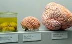 Avoir un gros cerveau rimerait avec danger d'extinction