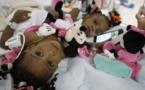 Deux ex-petites siamoises séparées en France de retour au Cameroun